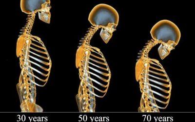 Osteoporose: Wenn Knochen bröseln