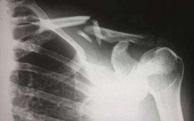 Knochenbestandteile und Bewegung